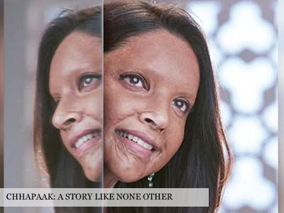 The trailer of Chhapaak leaves you speechless!